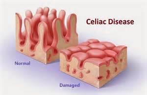 Celiac Disease Damaged & Normal Villi Pictured
